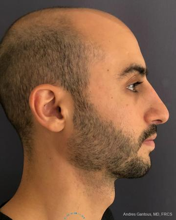 Rhinoplasty: Patient 91 - After Image 5