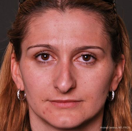 Rhinoplasty: Patient 36 - Before Image 1