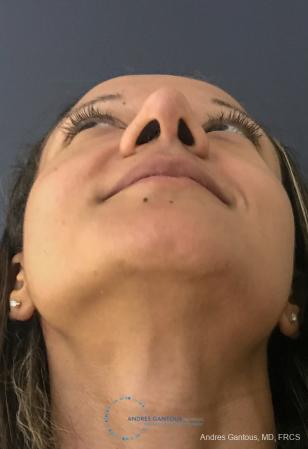 Rhinoplasty: Patient 93 - After 2