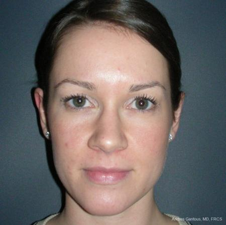 Otoplasty And Earlobe Repair: Patient 6 - After Image 1