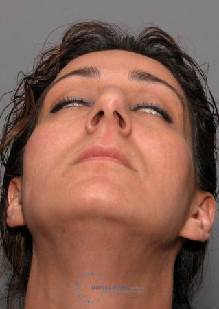 Revision Rhinoplasty: Patient 17 - Before 2