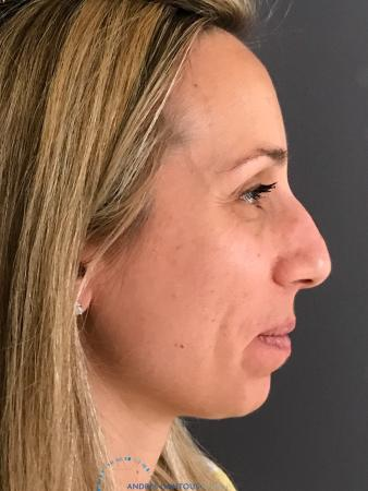 Rhinoplasty: Patient 75 - Before Image 4