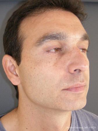 Rhinoplasty: Patient 45 - Before Image 2