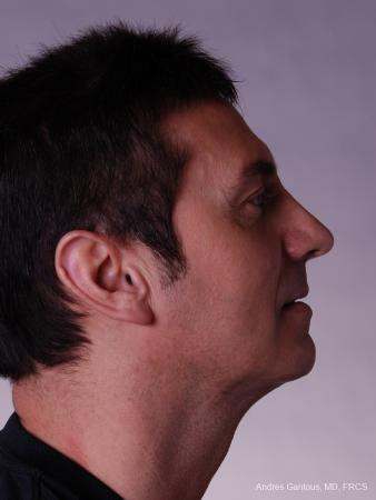 Rhinoplasty: Patient 11 - After Image 3