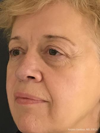 Rhinoplasty: Patient 21 - After Image 3