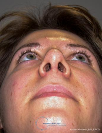 Rhinoplasty: Patient 93 - After Image 2