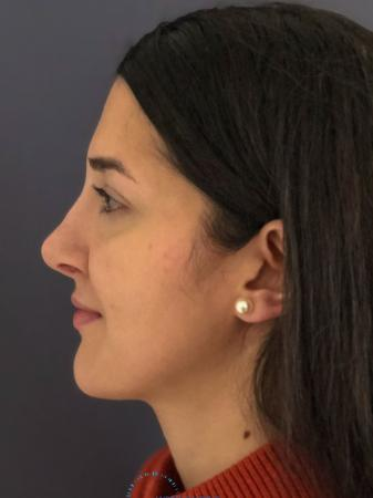 Rhinoplasty: Patient 10 - After Image 5