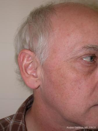 Otoplasty And Earlobe Repair: Patient 24 - Before Image 2
