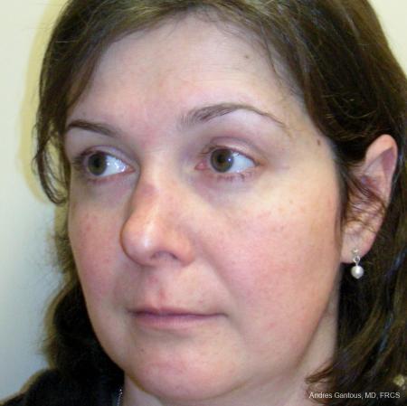 Reconstructive Rhinoplasty: Patient 5 - Before Image 4