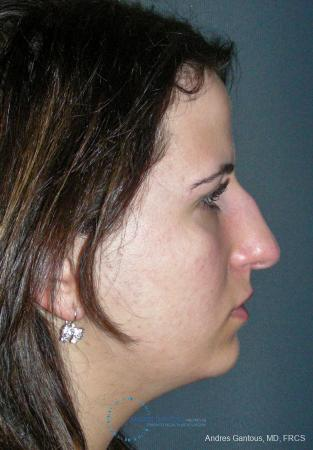 Rhinoplasty: Patient 95 - Before Image 5