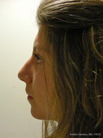 Rhinoplasty: Patient 52 - After Image 3
