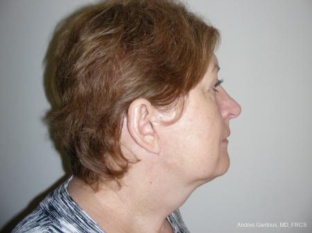 Facelift & Neck Lift: Patient 9 - Before Image 3