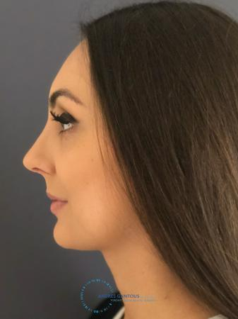 Rhinoplasty: Patient 12 - After Image 5