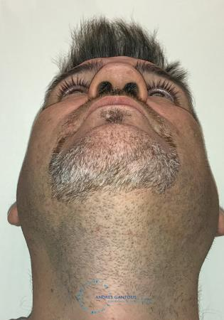 Revision Rhinoplasty: Patient 24 - Before Image 2