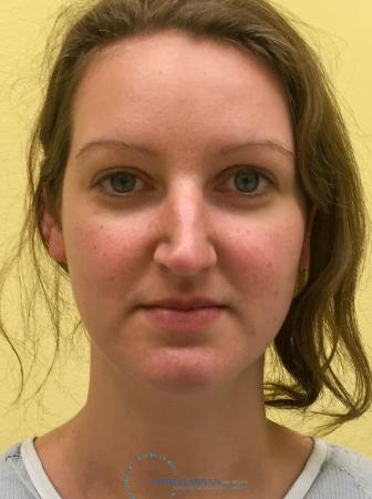 Rhinoplasty: Patient 66 - Before Image 1