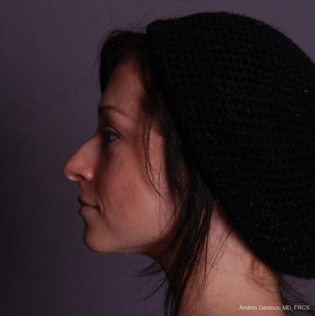 Rhinoplasty: Patient 47 - Before and After Image 5