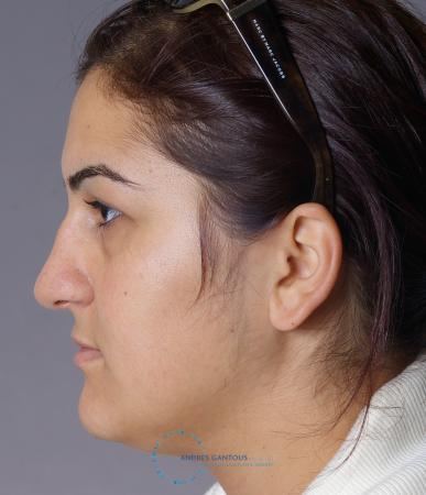 Rhinoplasty: Patient 72 - Before and After Image 5