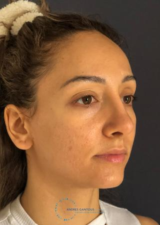 Rhinoplasty: Patient 62 - After Image 3
