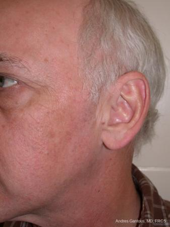 Otoplasty And Earlobe Repair: Patient 24 - Before Image 4