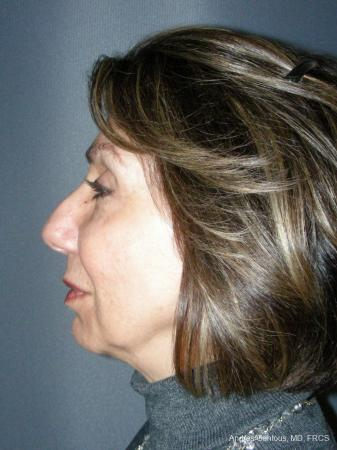 Rhinoplasty: Patient 55 - Before Image 3