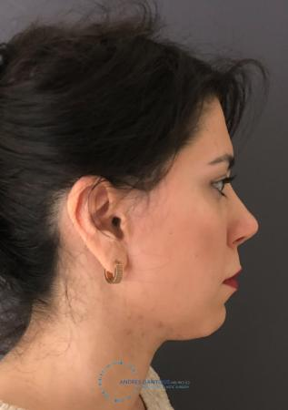 Revision Rhinoplasty: Patient 18 - After Image 5
