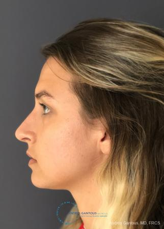 Rhinoplasty: Patient 90 - After Image 6