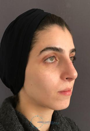 Rhinoplasty: Patient 60 - After Image 3