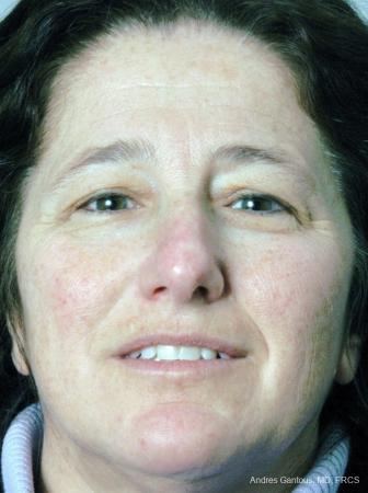 Rhinoplasty: Patient 17 - Before Image 1