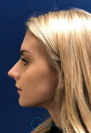 Rhinoplasty: Patient 2 - Before and After Image 6