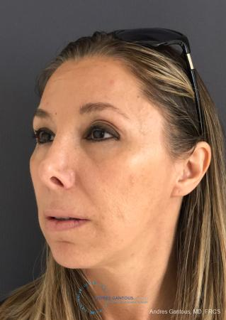 Revision Rhinoplasty: Patient 3 - Before Image 3