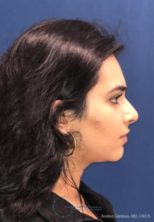 Rhinoplasty: Patient 88 - After Image 5