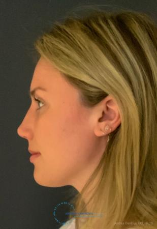 Rhinoplasty: Patient 93 - After Image 6