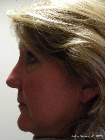 Rhinoplasty: Patient 19 - After Image 4
