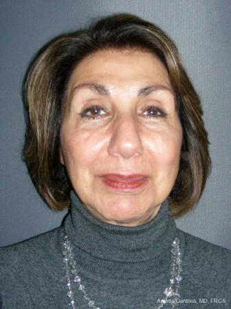 Rhinoplasty: Patient 55 - Before Image 1
