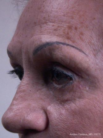 Eyelid Lift: Patient 8 - Before Image 4