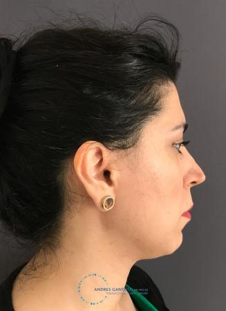 Revision Rhinoplasty: Patient 18 - Before Image 5