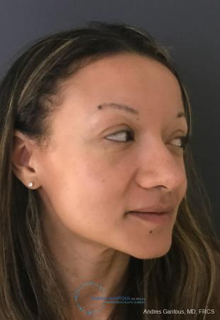 Rhinoplasty: Patient 93 - After 3