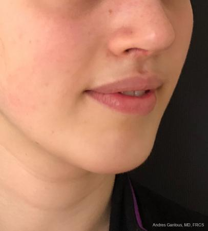 Chin Augmentation: Patient 5 - After Image 2