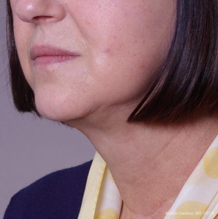 Facelift & Neck Lift: Patient 2 - After Image 2
