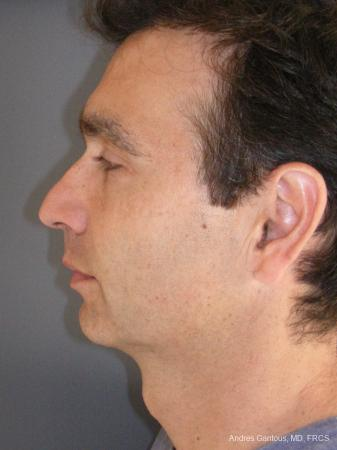 Rhinoplasty: Patient 45 - Before Image 5
