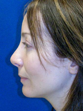 Revision Rhinoplasty: Patient 2 - After Image 5