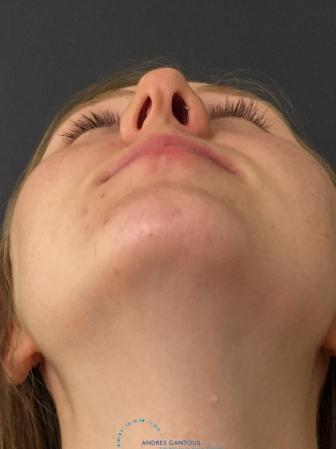 Rhinoplasty: Patient 28 - Before Image 2