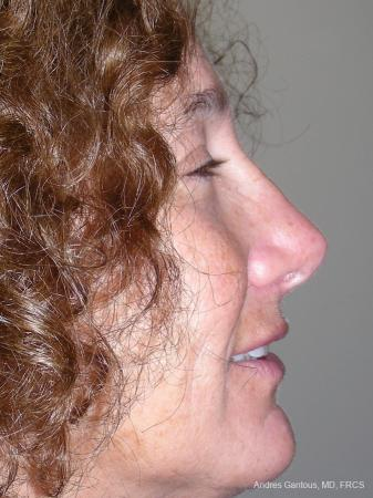 Rhinoplasty: Patient 17 - After Image 2
