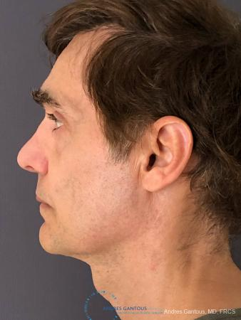 Rhinoplasty: Patient 80 - After Image 6