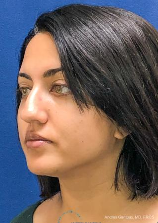 Rhinoplasty: Patient 84 - Before Image 4