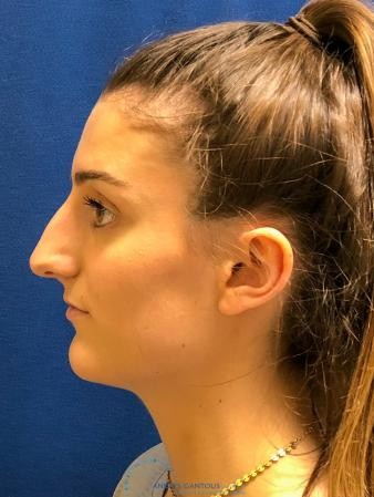 Rhinoplasty: Patient 7 - Before and After Image 6