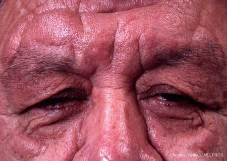 Eyelid Lift: Patient 3 - Before Image