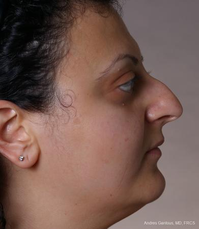 Rhinoplasty: Patient 62 - Before and After Image 5