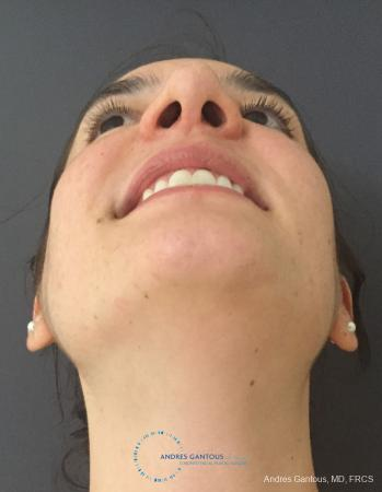 Rhinoplasty: Patient 86 - After Image 2