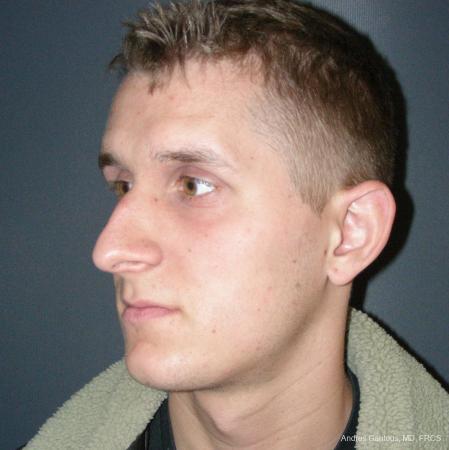 Rhinoplasty: Patient 50 - Before Image 4